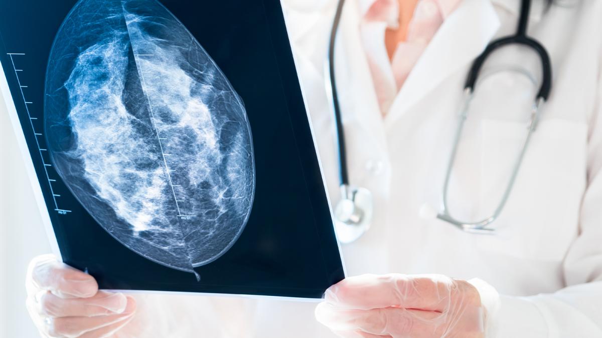 ML Prediction of Breast Cancer Survival